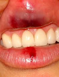 bouche blessure
